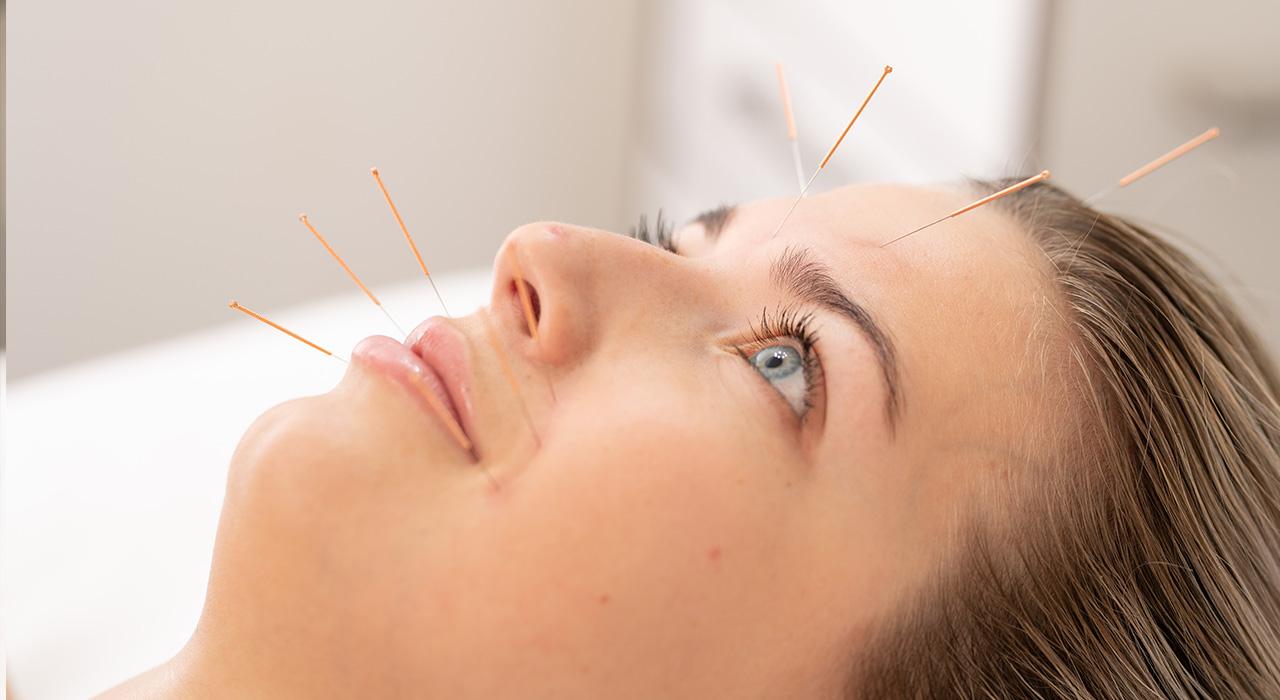 Cosmetische-acupunctuur-homepage