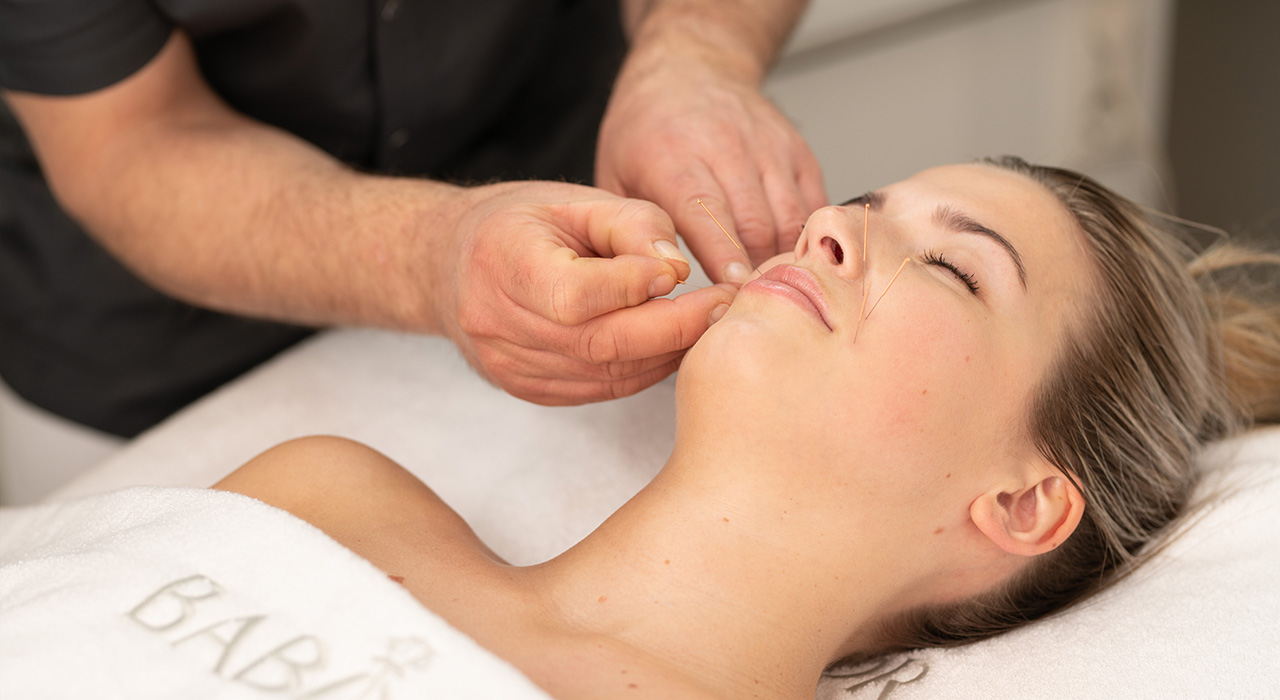 Cosmetische-acupunctuur