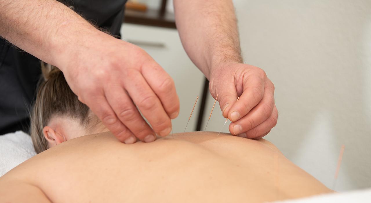 TCG-acupunctuur-RichardVelthorst